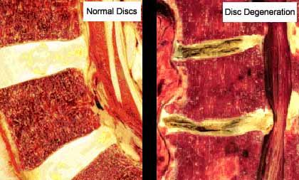 ¿Qué es un Pinzamiento Discal?¿Qué significa Degeneración Discal?