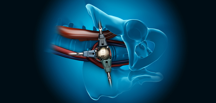OLIF: el abordaje lumbar anterolateral que supera otras técnicas
