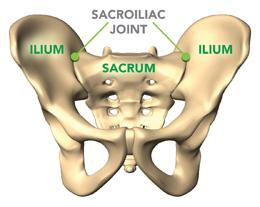 Sacroilitis mecánica secundaria a fusiones lumbares