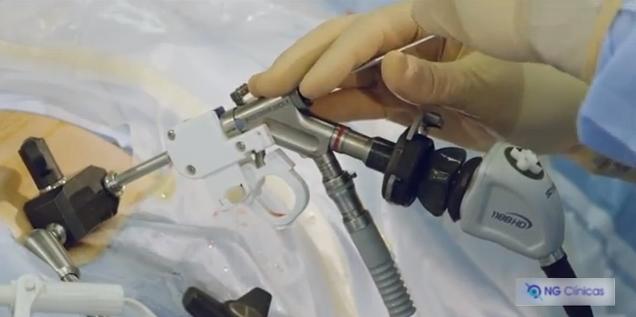 Foraminoscopia. La operación de hernia discal sin ingreso.